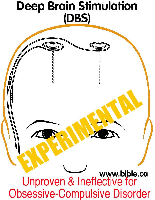 Deep brain stimulation(DBS): Mental Illness Obsessive-Compulsive ...