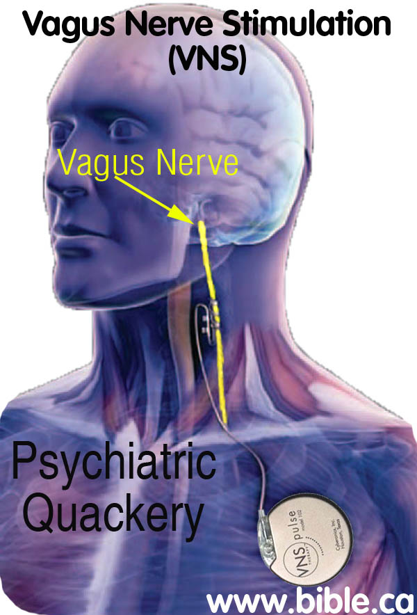 Vagus Nerve Stimulation Vns Mental Illness Depression Brain